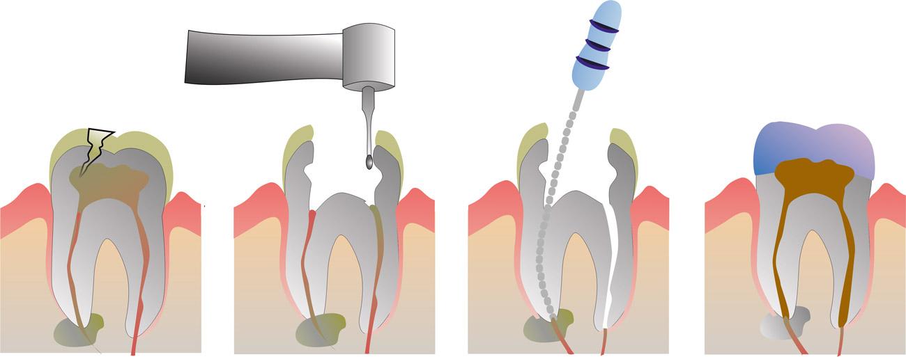 tratamiento de endodoncia en villaverde